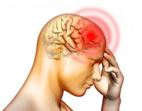 migrain2
